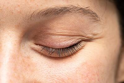 Augenlider schlaff