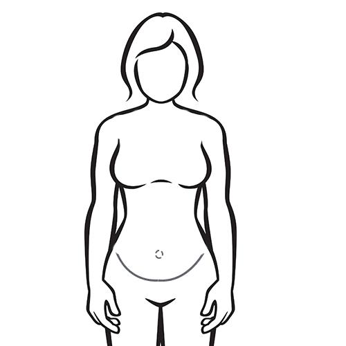 Narbenverlauf nach der Bauchdeckenstraffung