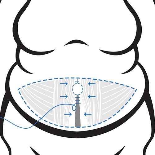 Zusammenfügen und Fixieren der Bauchmuskeln