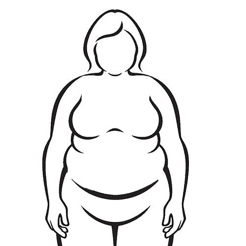 Zustand vor der Bauchdeckenstraffung