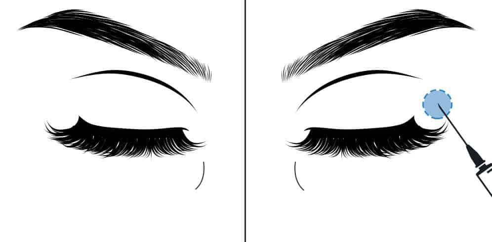 Augenfalten entfernen