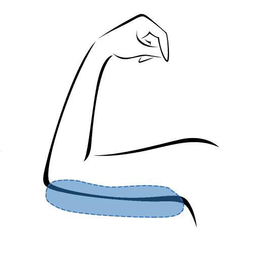 Fettpolster an den Oberarmen entfernen