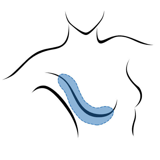 Fettabsaugung an der Brust