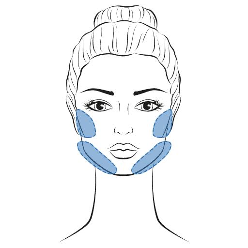 Fettabsaugung im Gesicht