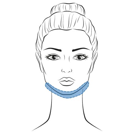 Fettabsaugung am Hals