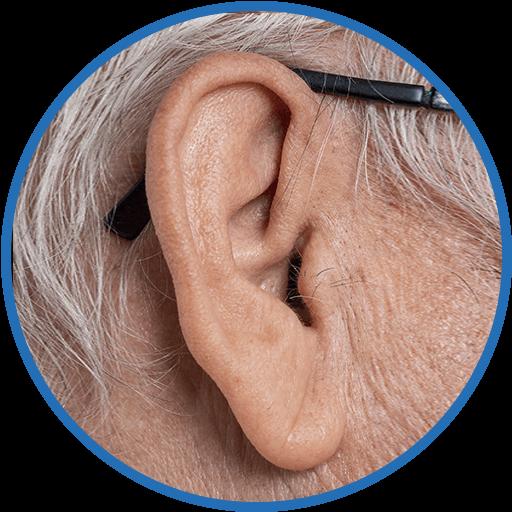 Ohrverkleinerung