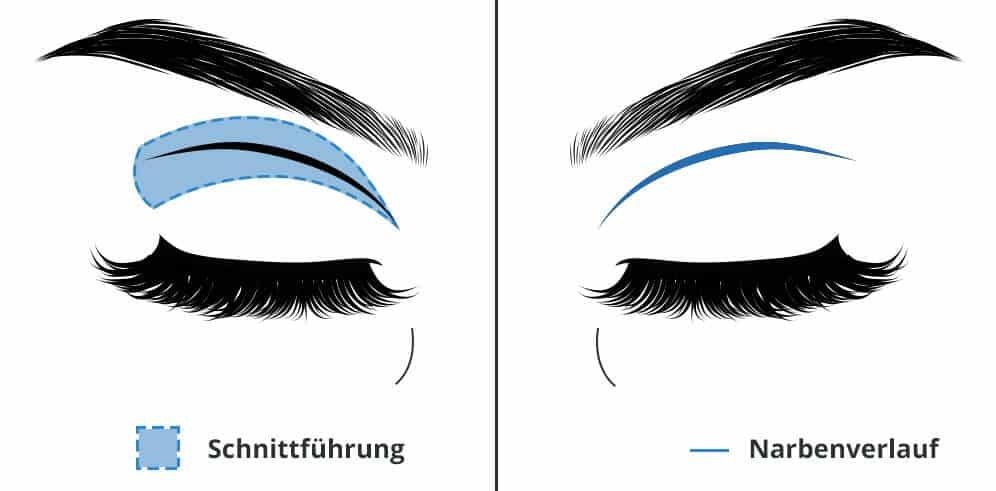 Augenlidstraffung - Oberlidstraffung