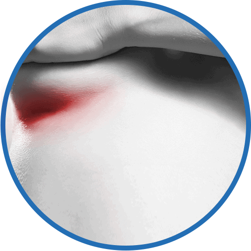 Reizungen und Infektionen in der Unterbrustfalte